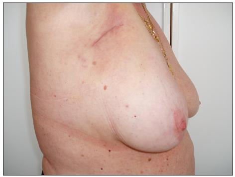 Stav po exenteraci pravé axily Fig. 13. The condition following the right axilla exenteration