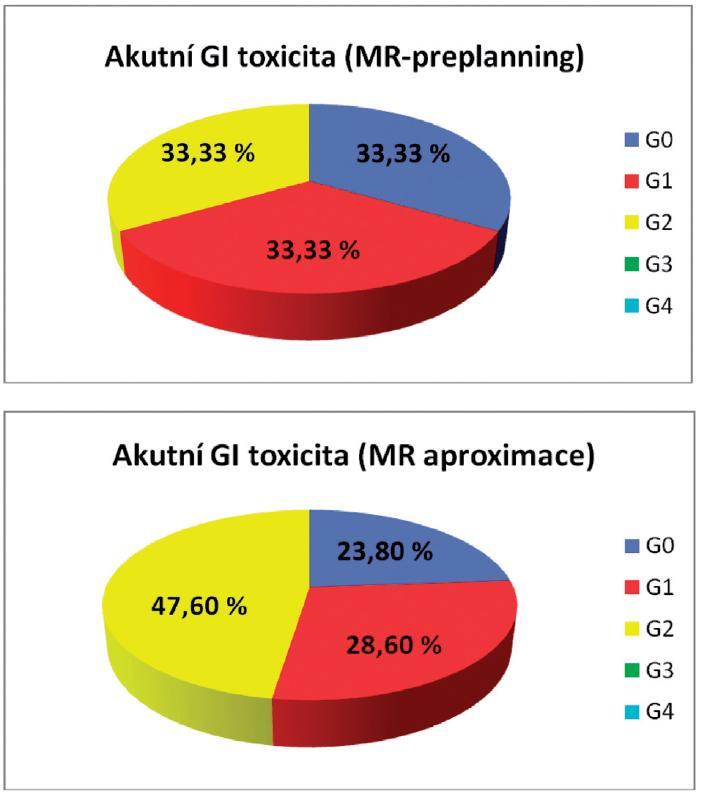 Akutní gastrointestinální toxicita