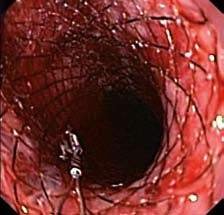 Proximální konec stentu po zavedení do jícnu (endoskopický obraz).