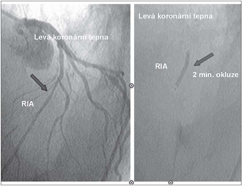 """Intrakoronární implantace kmenových buněk do ramus interventrikularis anterior (RIA) metodou """"over the wire PCI"""" katétrem s balónkem o průměru 3,5 mm. Aplikace 5 ml buněčného koncentrátu během 2minutové okluze tepny."""