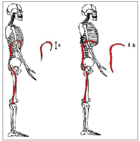 Výška apoziční zóny bránice a) v optimálním postavení; b) v inspiračním postavení hrudníku (převzato od Hruska, 2005).