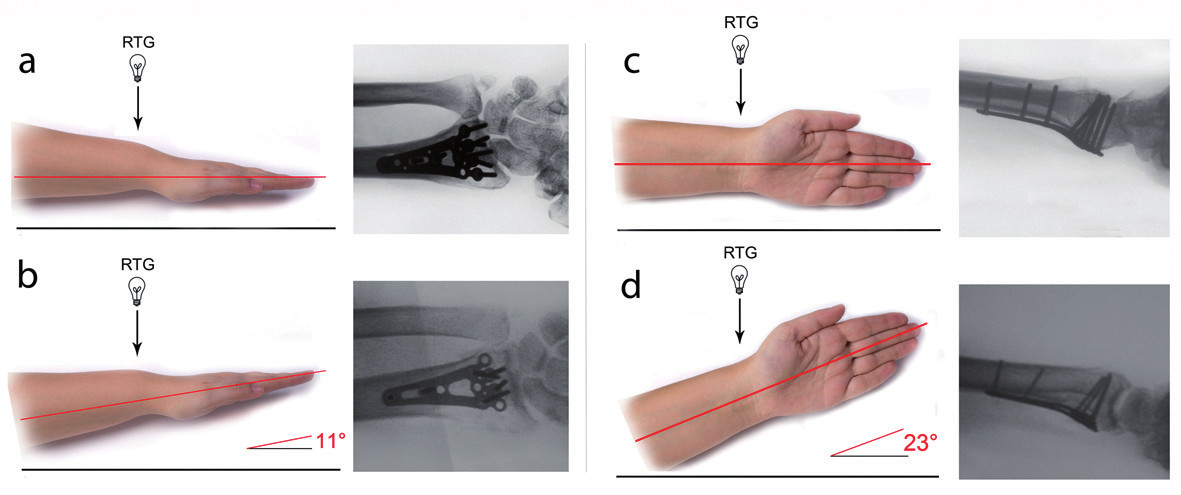 Šikmé projekce zhotovené během operace umožňují na rozdíl od předozadních a bočných projekcí vyhodnocení správného zavedení šroubů bez prominence do radiokarpálního skloubení: a) předozadní projekce b) šikmá předozadní projekce c) bočná projekce d) šikmá bočná projekce