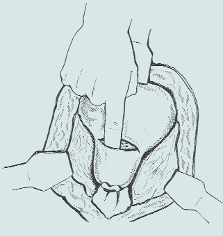 Millinova prostatektomie [34].
