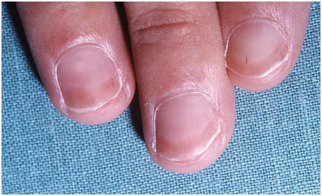 """""""Half-and-half nail"""" a třískovité hemoragie u pacienta s chronickou renální insuficiencí léčeného hemodialýzou"""