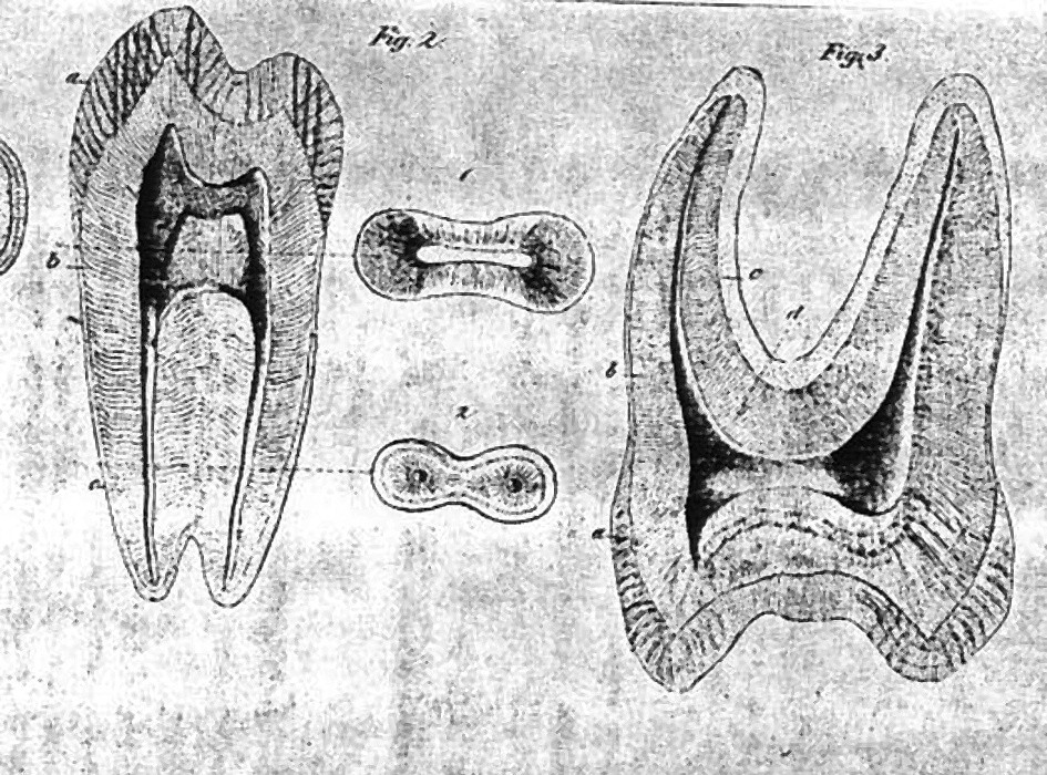 Ilustrace ze spisu M. Fraenkela.