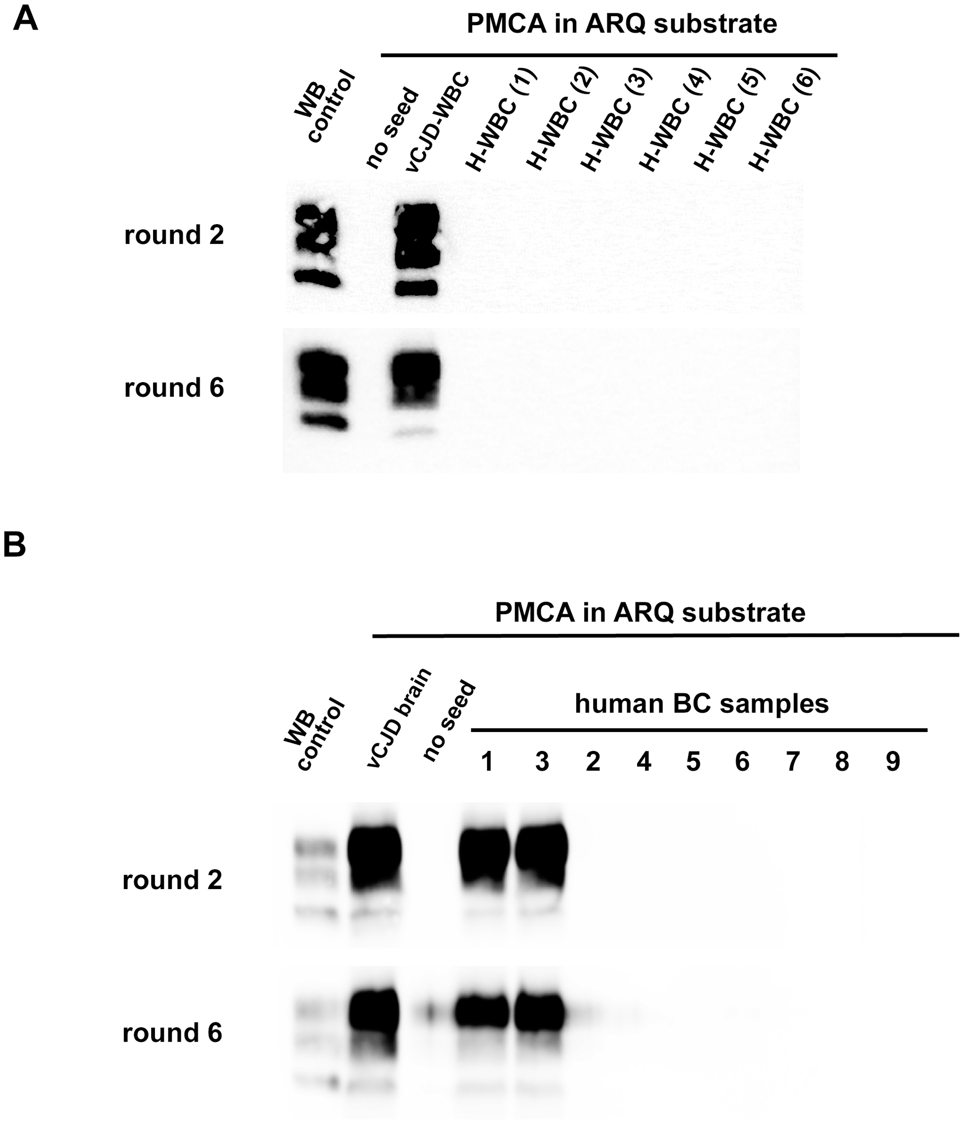 PrP<sup>res</sup> in PMCA reactions seeded with WBC or BC from a vCJD affected patients and healthy controls.