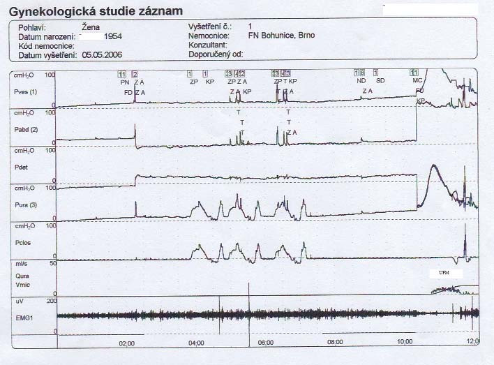 Záznam UD vyšetření levého močového měchýře.