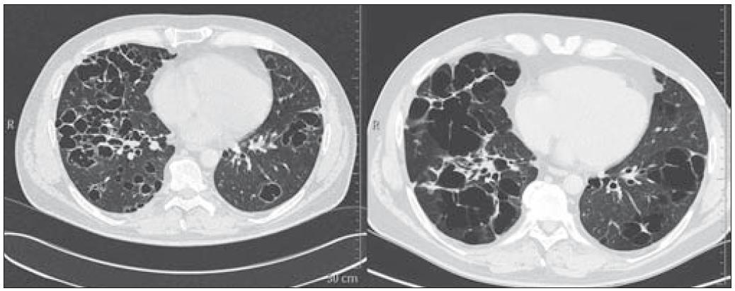 Pacient narozený 1969, HRCT ze dne 22. 5. 2008 a 7. 12. 2009. Splývající silnostěnné cysty v konglomeráty. Tyto cysty byly důvodem ke vzniku spontánních pneumotoraxů.