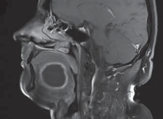 Magnetická rezonance – cystický útvar na spodině dutiny ústní.