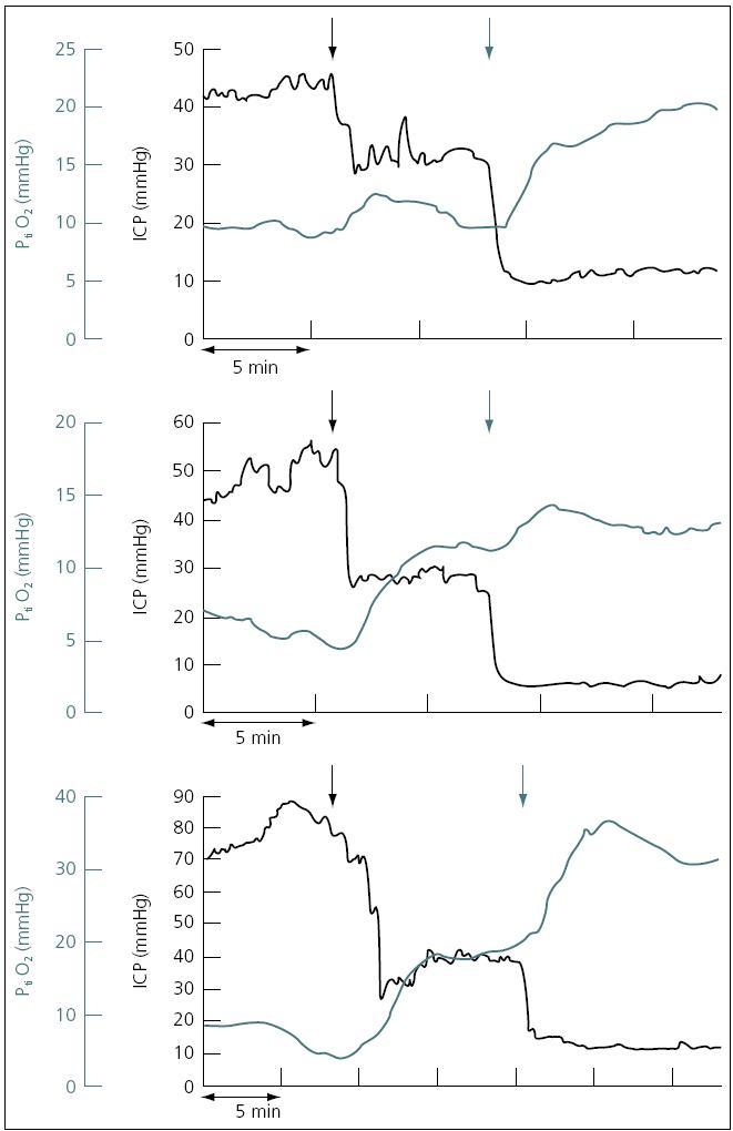 Pozitivní korelace ICP a PtiO<sub>2</sub> u tří pacientů.