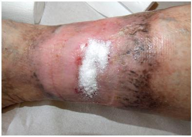 Ulcerace na bérci vpravo v terénu chronické žilní insuficience po aplikaci krytí Altrazeal