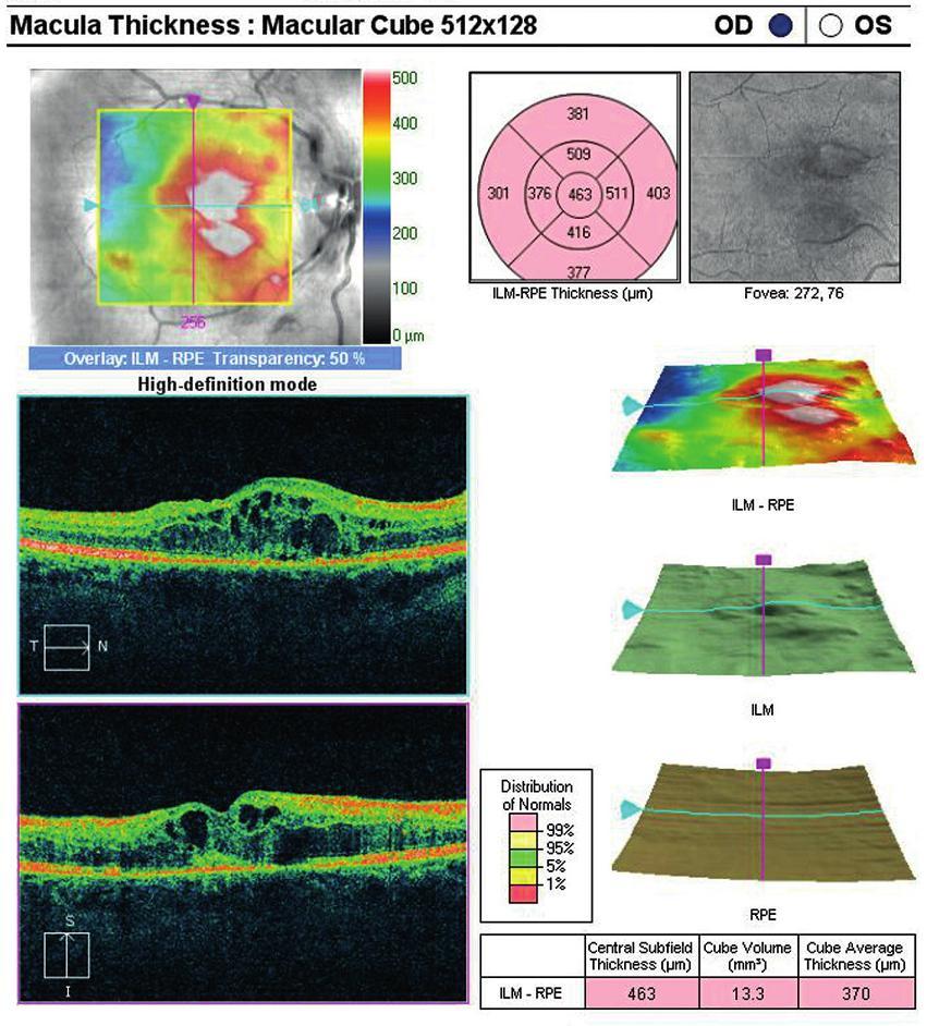 OCT centrální krajiny oka pravého. Cystický edém neuroretiny.