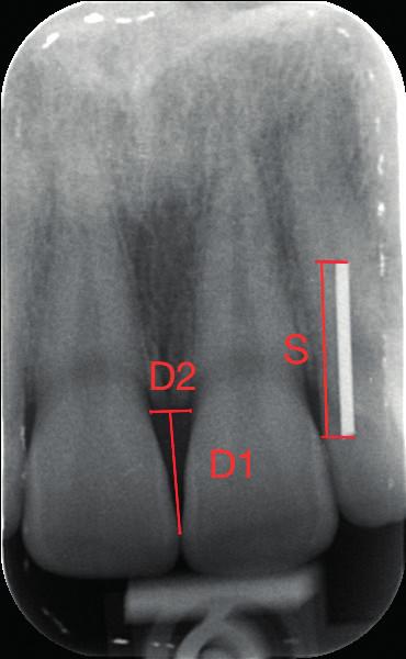 Intraorální rentgenový snímek regio 11-21.
