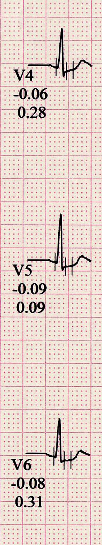 Obr. 1 B. Ergometrií indukované změny ve svodech V<sub>4-6</sub> (denivelace ST úseků do 1 mm bez subjektivně vnímaného korelátu)