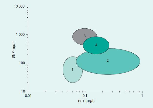 Graf. Rozdělení pacientů do 4 skupin podle přítomnosti akutního srdečního selhání (AHF) a pneumonie