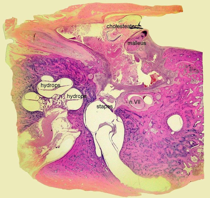 Akutní serózní (toxická) labyrintitida – endolymfatický hydrops. Mikrodehiscence kanálu lícního nervu. Kazuistika 1. - histologický obraz, horizontální řez pravou spánkovou kostí, barvení hematoxylin eozin.