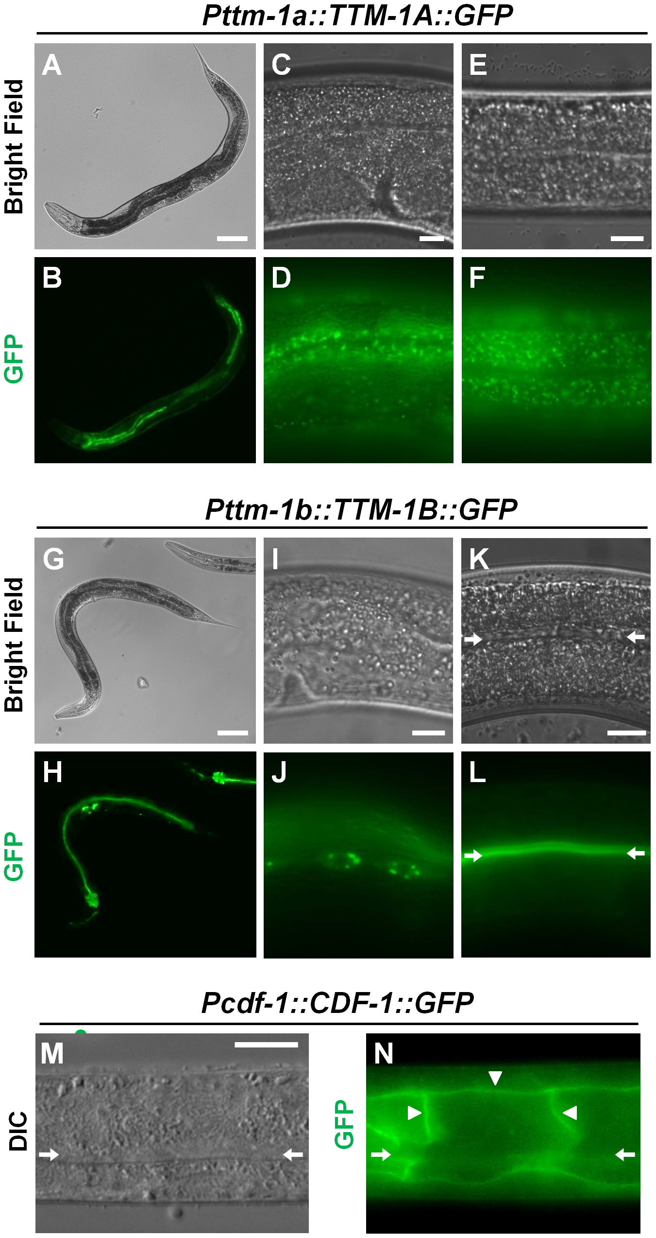 Intracellular localization of TTM-1 isoforms and CDF-1.