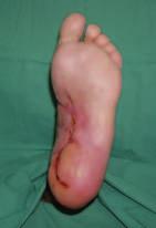 Zhojení defektu po 12 týdnech léčby preparátem Hyiodine®.