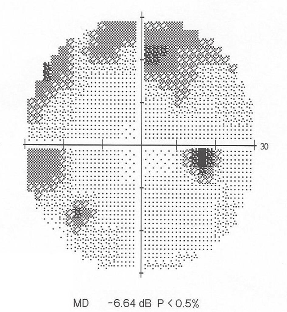 Perimetrie OP: Defekty v horní Bjerrumově oblasti s přesahem i do dolního nazálního kvadrantu