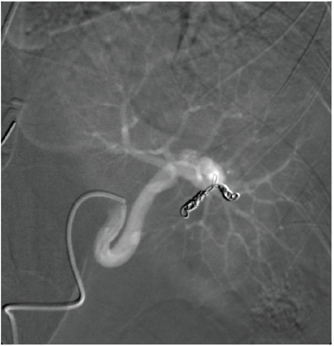 Obr. 2a, b: Příklad distální selektivní embolizace střední třetiny a distálního pólu sleziny