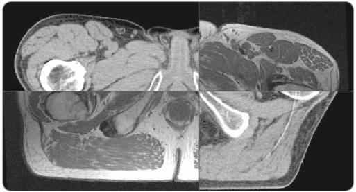 Fúze plánovacího CT s T1 magnetickou rezonancí, odpovídající uložení svalů dna pánevního, bulbus penis a rekta. Neodpovídající uložení pohyblivějších struktur – obrysů těla a hlavic stehenních kostí.