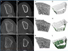 Kvantitativní CT vyšetření s vysokým rozlišením – HRqCT distální (A, E, I) a proximální části (B, F, J) radia, 3D rekonstrukce (C, G, K) a vizualizace kortikální kosti (D, H, L)