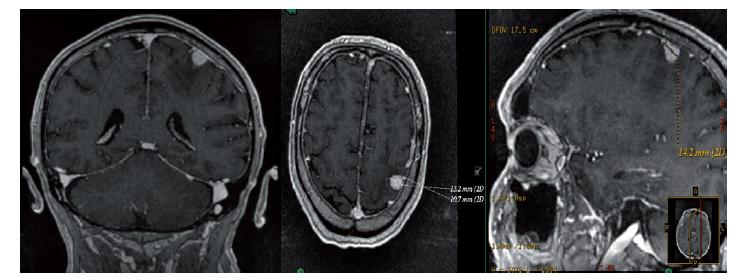 MRI mozku s nálezem supratentoriálně intraaxiálně kortikálně v gyrus postcentralis vlevo solidního solitárního ložiska charakteru metastázy