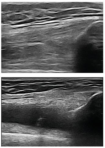 Ultrazvukový obraz suprapatelárního recesu kolenního kloubu.