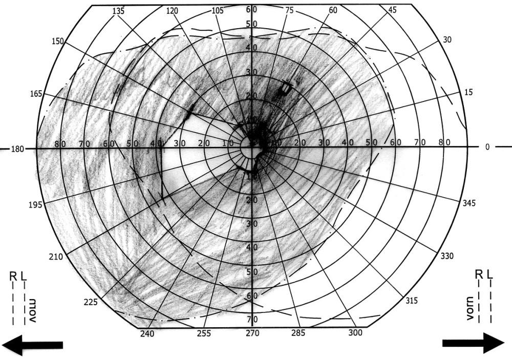 Obr. 4. Perimetr po dekompresi n. II OD a zavedení LPS. a) pravé oko b) levé oko