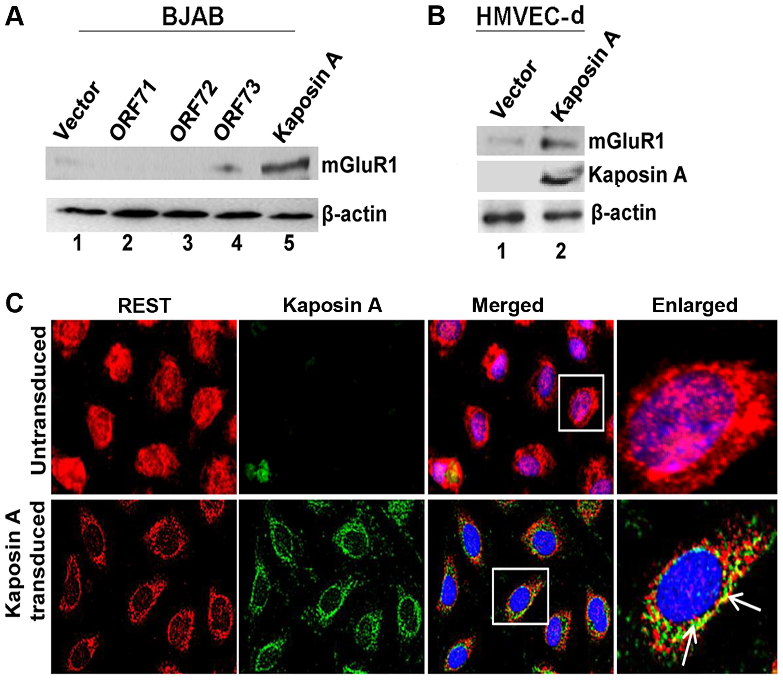 KSHV latency associated Kaposin A protein mediates mGluR1 expression.