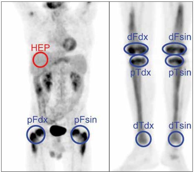 Metodika měření metabolické aktivity ve stanovených místech skeletu a referenčním parenchymu jater: index metabolické aktivity SUV<sub>max</sub> stanovujeme u všech studií v proximálních femurech, distálních femurech, proximálních i distálních tibích oboustranně a v játrech (referenční oblast), na rozdíl od obrázku ne ve 2D, ale ve 3D analýze.