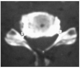 Osteofyty zúžená foramina bilaterálně: CT-axiální obraz.