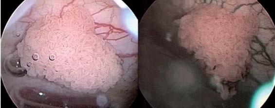 Obraz tumoru v konvenčním CSK obrazu vlevo a v NBI obrazu vpravo.