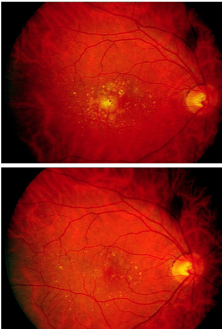Fundusfotografie nemocného s RPED před léčbou a po léčbě Obr. 1A: žlutá ploška odchlípení RPED je vymizelá po léčbě na obr. 1B