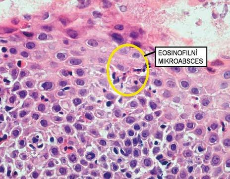 Histologický obraz eozinofilního mikroabscesu. Fig. 7. Histological image of eosinophilic microabscess.