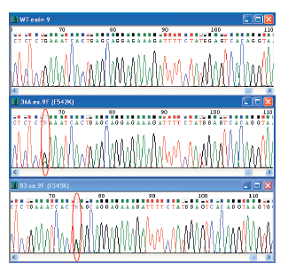 """Elektroferogramy zobrazujúce wild-type sekvenciu a dve """"hotspot"""" mutácie vyskytujúce sa v exóne 9 PIK3CA génu. Na obrázku sú uvedené čísla vzoriek a typ mutácie. Miesto mutácie je vyznačené."""