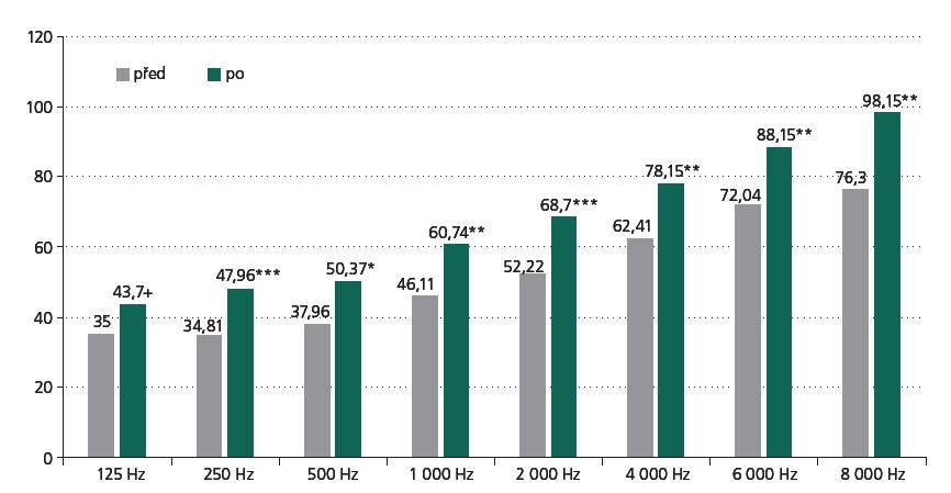 Změny sluchového práhu v decibelech (dB) před a po radiochirurgii. + hladina významnosti 0,1; * hladina významnosti 0,05; ** hladina významnosti 0,01; *** hladina významnosti 0,001.