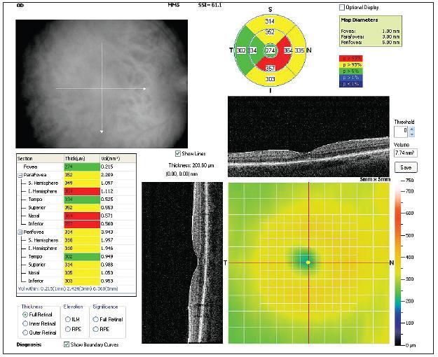 OCT obraz centrálnej sietnice pravého oka