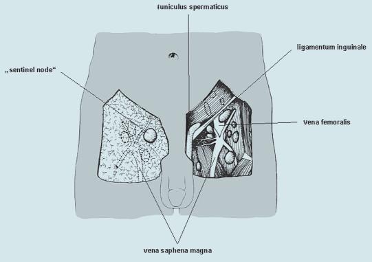 """""""Sentinel node"""". Na pravé straně je odstraněna kůže a tuková tkáň. Na levé straně je tuková tkáň ponechána."""