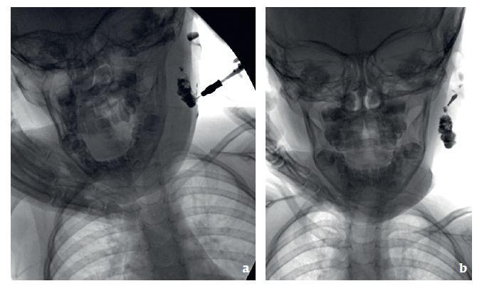 Obr. 2a, b Fistulografie u 3leté pacientky: cervikoaurální píštěl vlevo