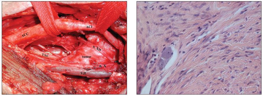 Obr. 2a, 2b. Ganglioneurom krčního sympatiku vlevo - a) peroperační nález: a. carotis externa resekována, patrný přechod truncus sympathicus cervicalis (TSC) do tumoru; b) tumor pozůstává z vřetenatých buněk, v levé části obrázku patrný shluk zralých gangliových buněk (hematoxylin-eosin, zv. 400x).