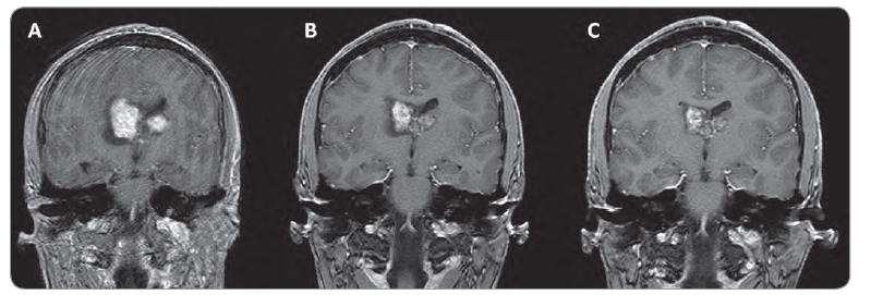Zmenšení velikosti SEGA u 15letého pacienta s bilaterálním postižením, léčeného everolimem.