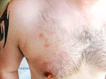 Detail kožní léze na trupu, stav po zahájení předfáze kortikosteroidy