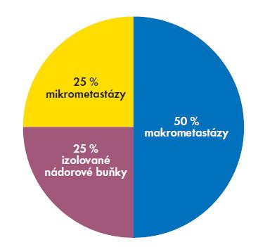 Diagram. Procentuální zastoupení metastáz podle velikosti v sentinelové uzlině.