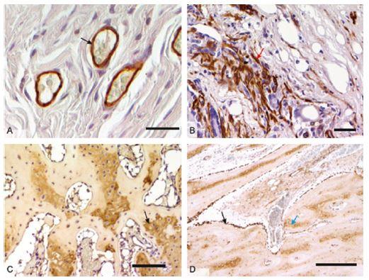 Mikrofotografie imunohistochemických preparátů orgánů z <i>in vivo</i> hodnocení biomateriálů: 2A – průkaz endoteliálních buněk (černá šipka) při testování sítěk pro prevenci vzniku hiátové hernie v břišní stěně prasete, detekce pomocí protilátky anti-CD31, měřítko 50 μm; 2B – kontraktilní myofibroblasty (červená šipka) v břišní stěně prasete, detekce pomocí protilátky proti hladkosvalovému aktinu, měřítko 100 μm; 2C – průkaz kolagenu typu II v hyalinní chrupavce (černá šipka) diferencující se v osteochondrálním defektu kondylu femuru králíka, detekce pomocí protilátky proti-kolagenu II, měřítko 100 μm; 2D – průkaz kostního proteinu osteokalcinu v osteoblastech (černá šipka) a kostní matrix (modrá šipka) v osteochondrálním defektu u králíka, detekce pomocí protilátky anti-osteokalcin, měřítko 50 μm. U všech snímků vizualizace pomocí peroxidázové reakce a diaminobenzidinu, kontrabarvení jader Gillovým hematoxylinem.