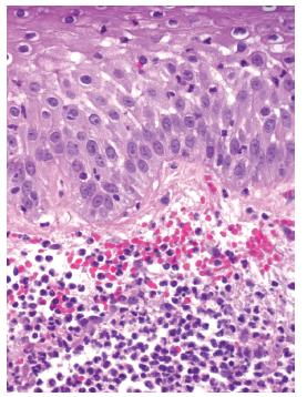 Obr. 3b. Subepidermální edém koria s erytrocytárními extravazáty a spongióza epidermis s exocytózou neutrofilů přítomných i v koriu