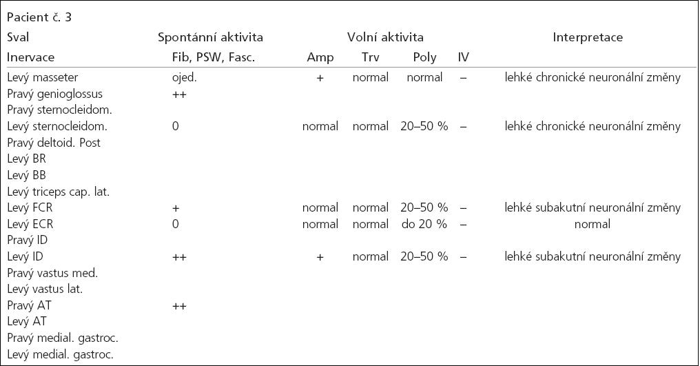 Tab. 2c. Výsledky vyšetření jehlovou EMG.