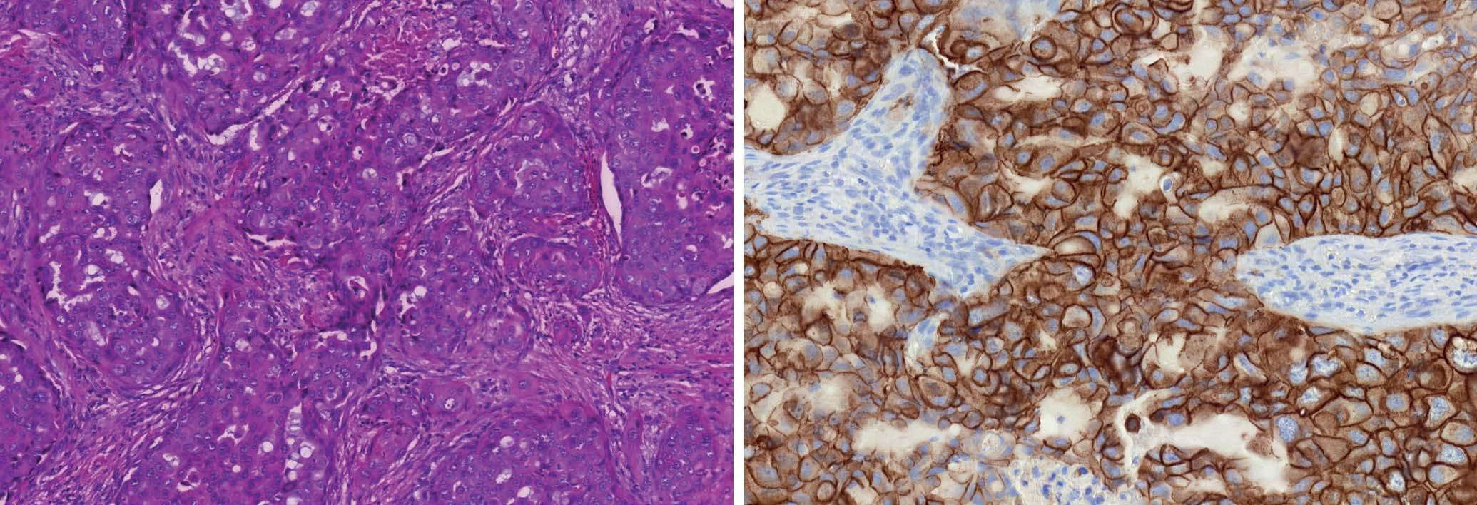Grade 3 duktální karcinom (A). HER2/neu pozitivní profil charakterizuje overexprese a amplifikace genu HER2/neu bez ohledu na prezenci či absenci hormonálních receptorů (B).