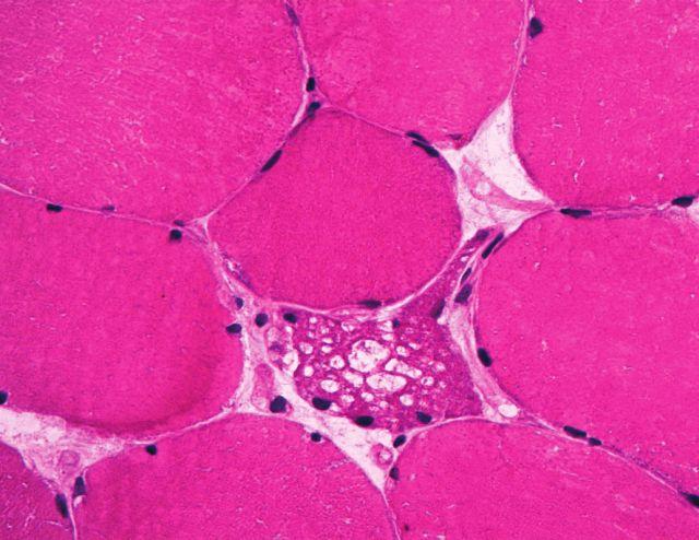 Obr. 3. <i>Případ č. 3 – Mikroskopicky okultní Pompeho nemoc</i>. Přehledné barvení izopentanem zmraženého fiezu (A) ani analýza polotenkého plastického řezu před elektronovou mikroskopií obarveného toluidinovou modří (B) známky  vakuolizace ani stříádání patologického materiálu neodhalila. Až sériové prokrajování archivního materiálu odhalilo jediné vakuolizované vlákno (C). Zvětšení 100x (A), 200x (B), 400x (C).
