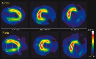 Fixní defekt perfuze laterálně a inferolaterálně s nízkým uptakem radiofarmaka (< 50 % maxima) odpovídající jizvě po infarktu myokardu.